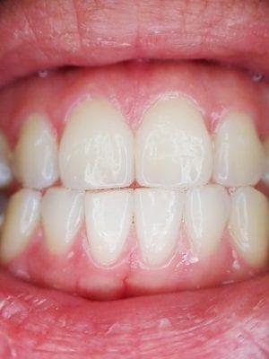 bonding teeth